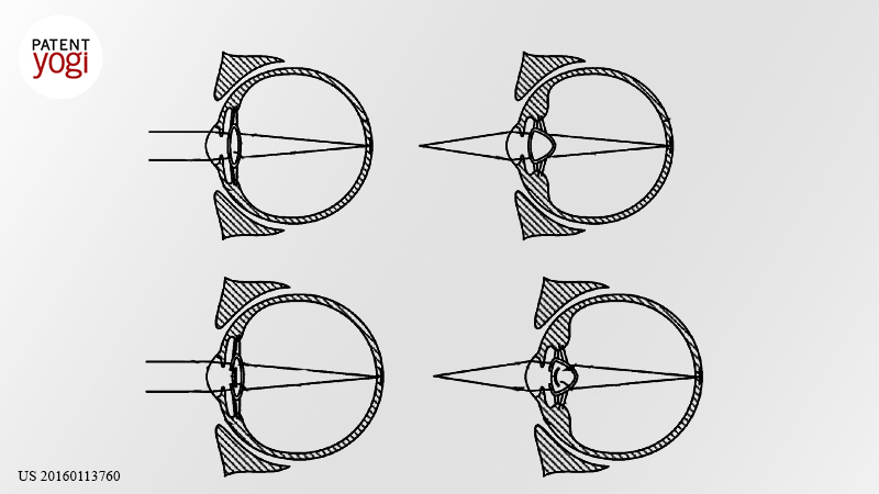 PatentYogi_Google patents cyborg eyeball