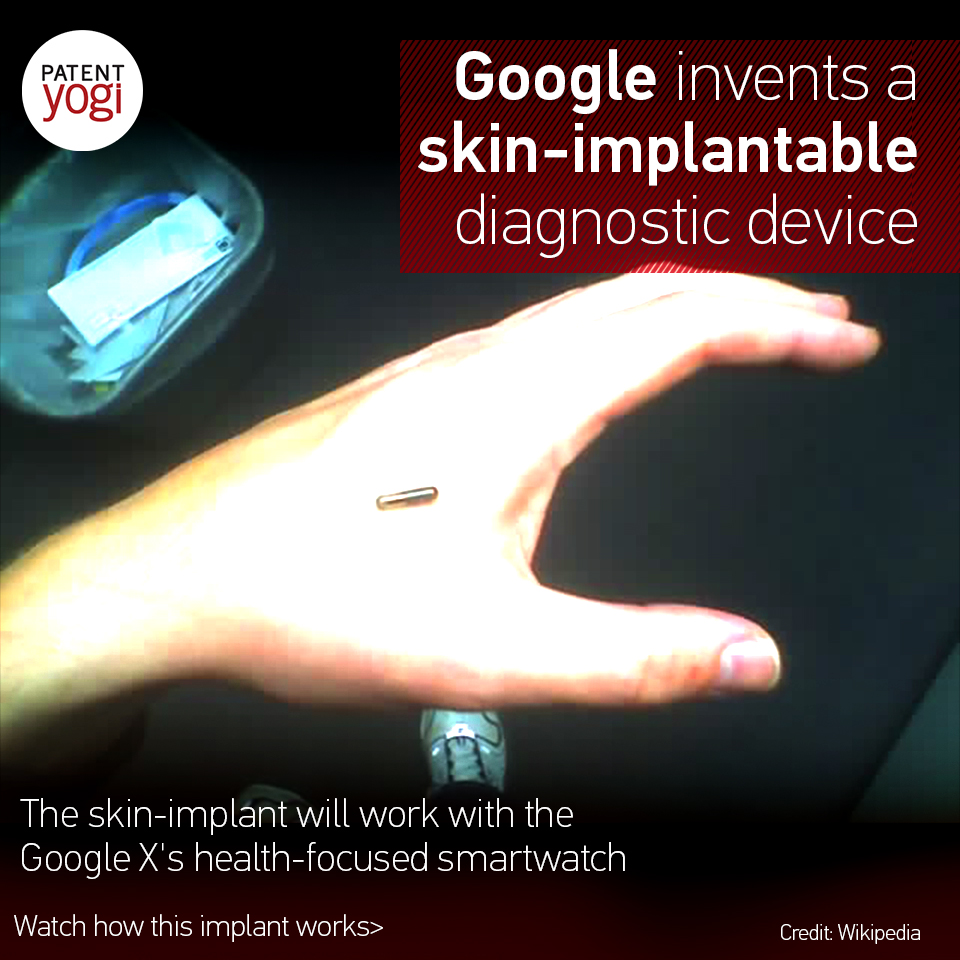 patentyogi_google-invents-a-skin-implantable-diagnostic-device